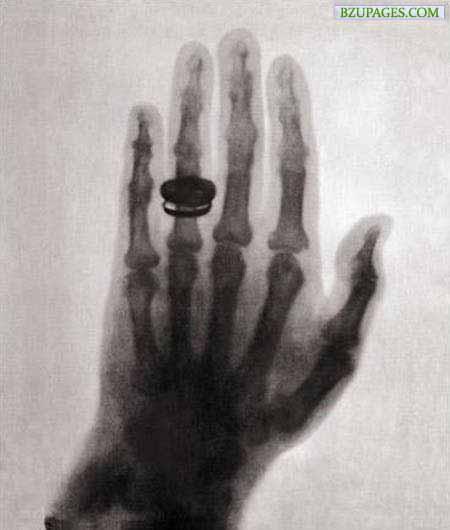 Name:  7. World's First X-Ray (1895) Röntgen's wife hand.jpg Views: 6169 Size:  29.6 KB