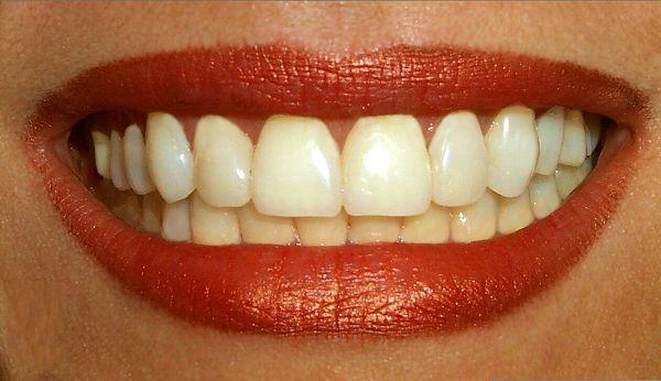 Name:  How to Keep Teeth White Naturally.jpg Views: 1277 Size:  35.6 KB