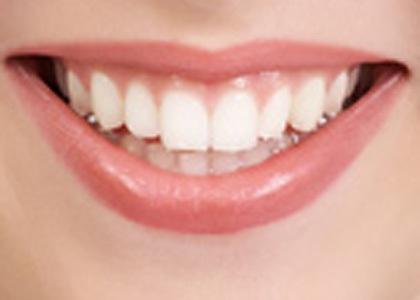 Name:  How to Keep Teeth White Naturally1.jpg Views: 1163 Size:  19.2 KB