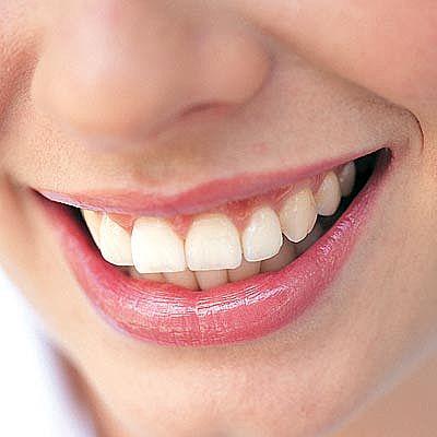 Name:  How to Keep Teeth White Naturally 2.jpg Views: 777 Size:  19.6 KB